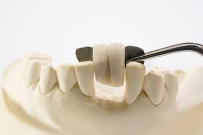 Dental bridge unit diplayed on a model made by Bendigo dental lab