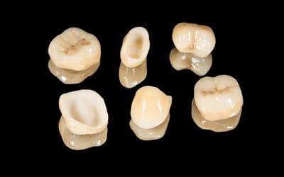Porcelain dental crowns on display