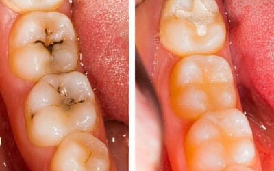 White composite filling placed in tooth cavity - before and after images
